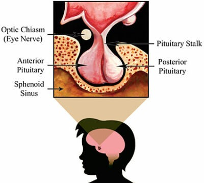 Normal pituitary